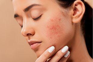 En qué se diferencia la dermatitis atópica de la psoriasis