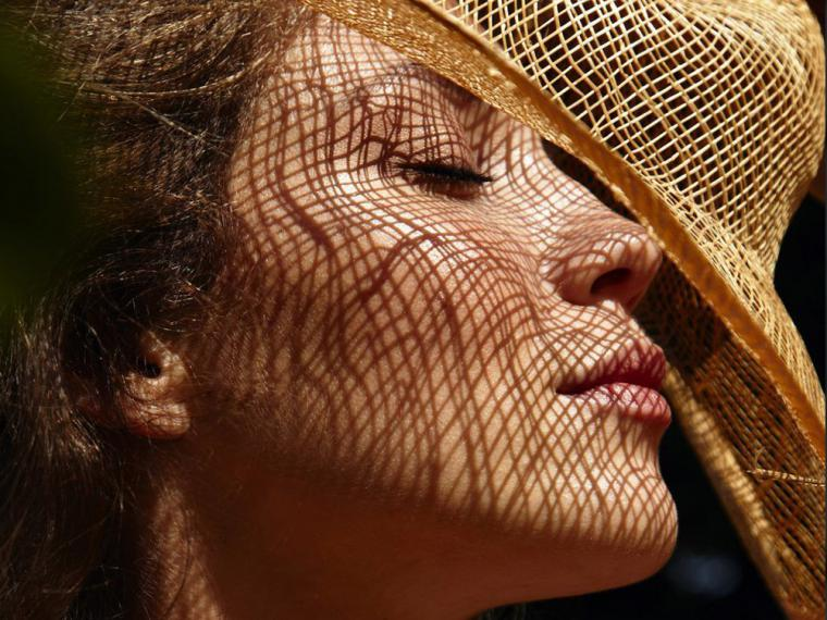 Todo lo que debes saber sobre la alergia al sol según un dermatólogo