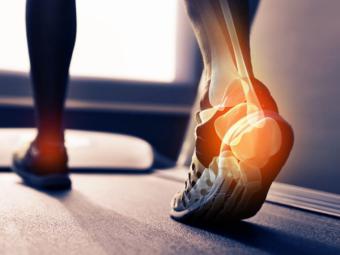 """Las lesiones más frecuentes de los """"runners"""" y cómo curarlas para llegar a la meta"""