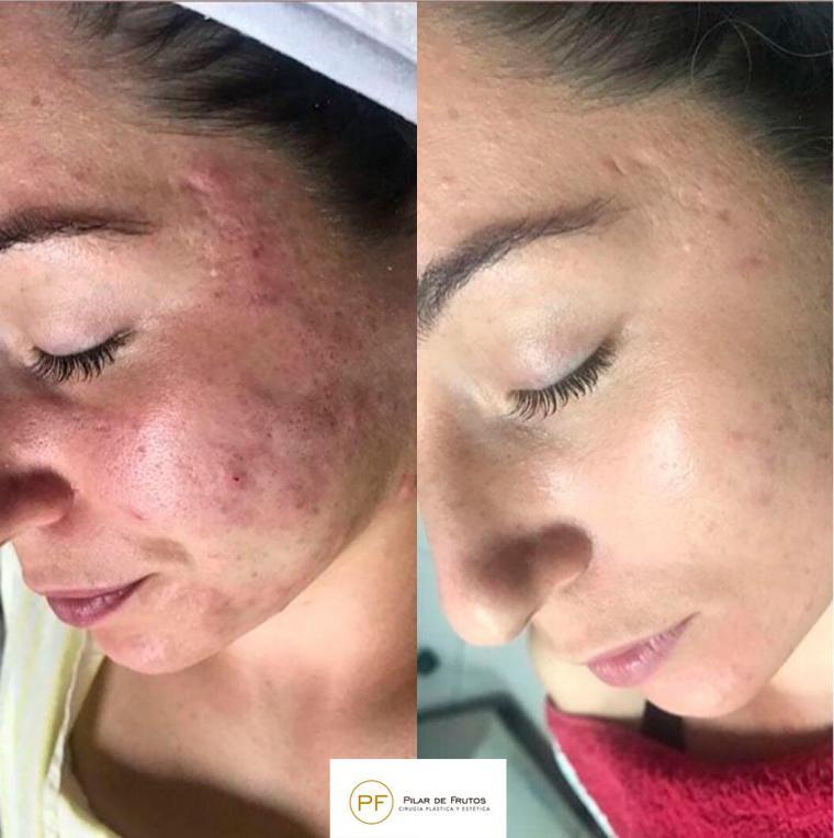Llega el tratamiento definitivo contra el acné y sus cicatrices