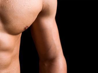 Ginecomastia: 5 causas y tratamiento