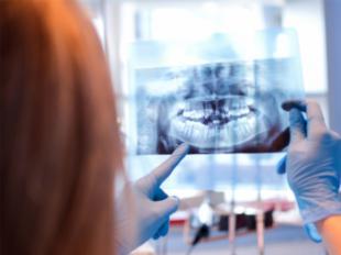 La técnica de regeneración ósea guiada revoluciona la colocación de los implantes dentales cuando falta hueso