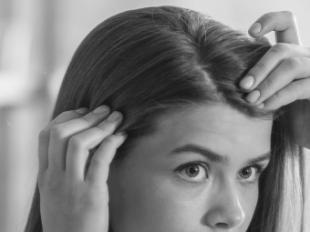La caída capilar reaccional, un problema que afecta en mayor medida a mujeres jóvenes