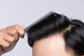 El Dr. Carmona, especialista del Grupo HLA, ha desarrollado una técnica propia para el microinjerto de pelo