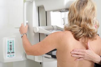 : Los hospitales del Grupo HLA cuentan con tecnología avanzada para el diagnóstico precoz del cáncer de mama.