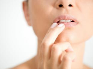 Herpes labial: causas y cómo cuidarlo