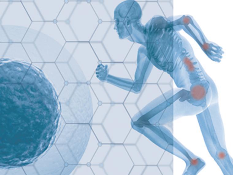 La medicina regenerativa lucha por mejorar la principal dolencia de las mujeres, la artrosis