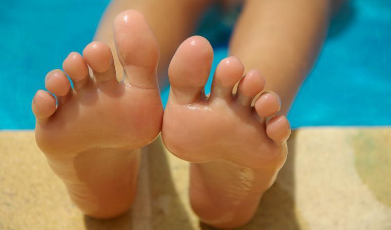 PIES: sudoración excesiva en verano
