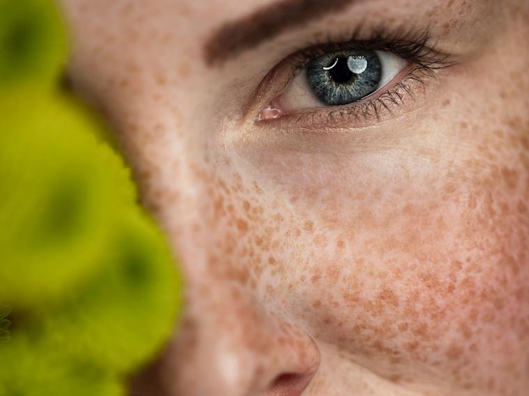 Los activos más eficaces contra las manchas de la piel