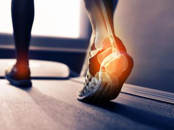 ¿Practicas running? Cuidado, no te lesiones