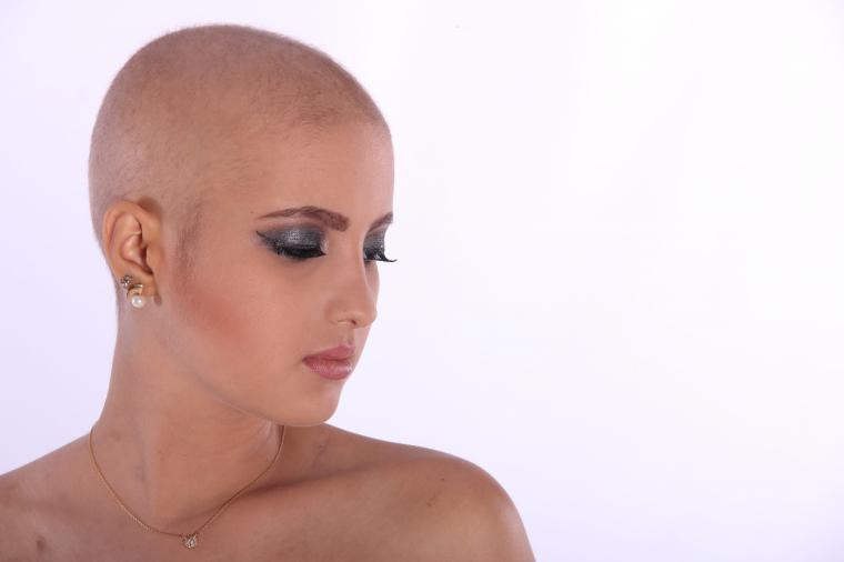 Dra. Mónica Rolando: 'El 20% de las mujeres padecen alopecia'
