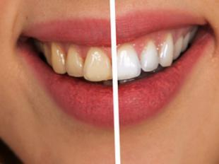 Blancorexia, la obsesión por unos dientes extra blancos