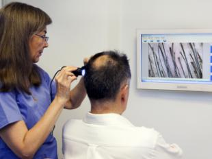 ¿Existe relación entre alopecia y COVID 19?