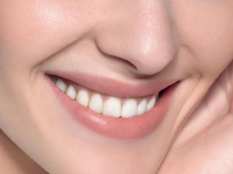 ¿Sabes qué es una 'gummy smile'?